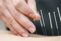 Dry Needling : pas d